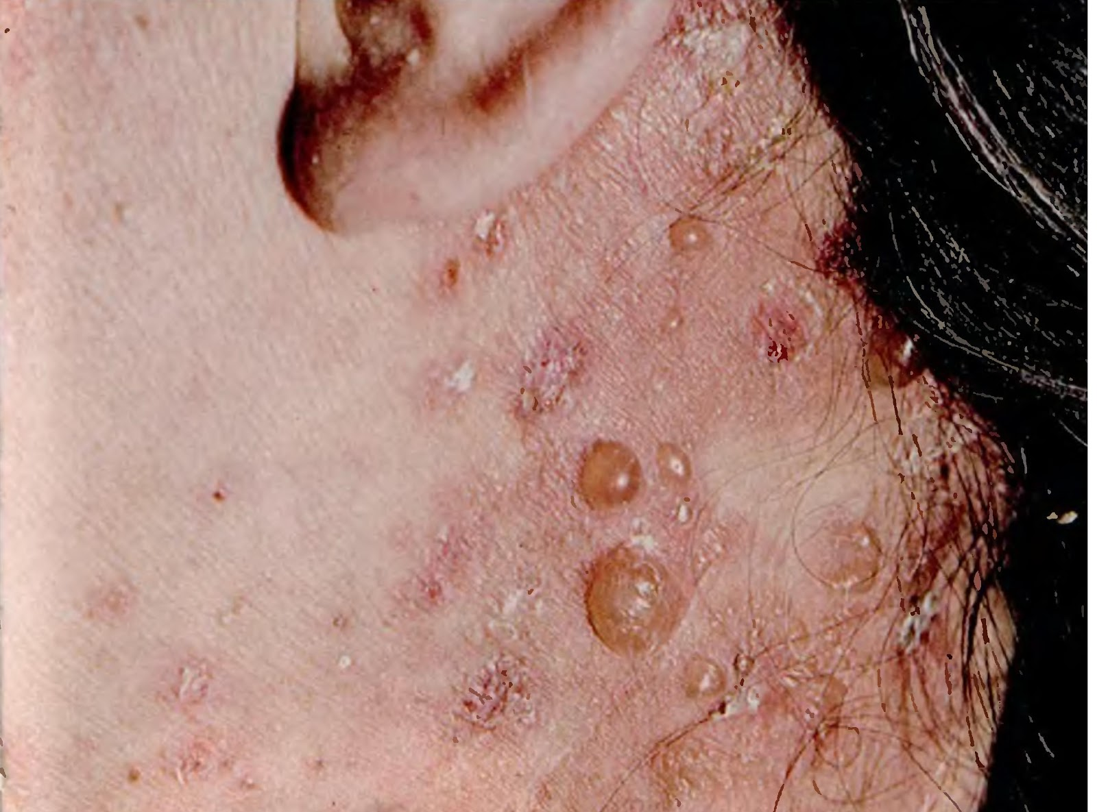 varicoză și iodinol)
